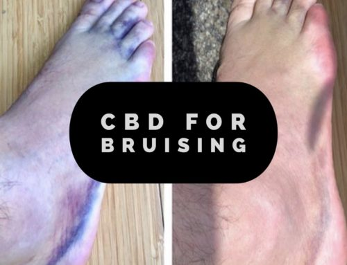 CBD for Bruising